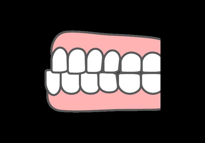下顎前突(受け口・反対咬合)