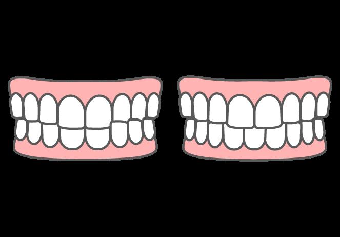 (臼歯部)交叉咬合